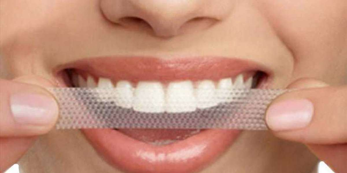 Why Expert Dentist Recommend Using Whitening Strips For Dental Care?