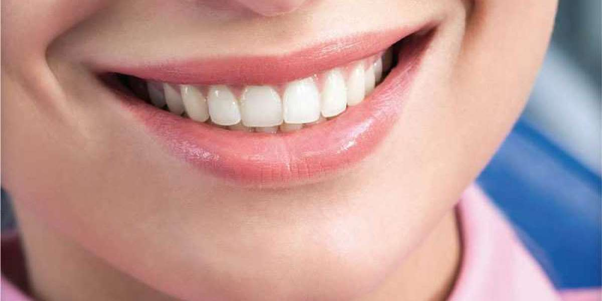 Having Sensitive Teeth - Should You Opt For Teeth Whitening Products?