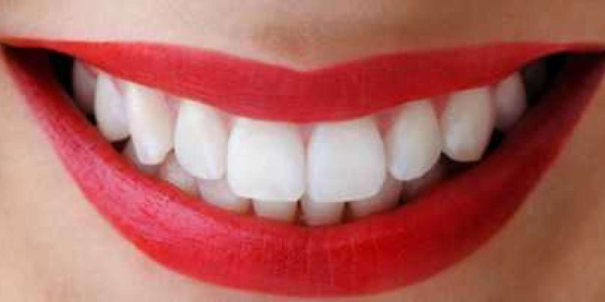 How Does Tooth Whitening Strips Help in Polishing and Removing Stains?